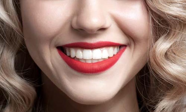 Najjeftiniji trik zbog kojeg holivudske zvijezde imaju superbijele zube