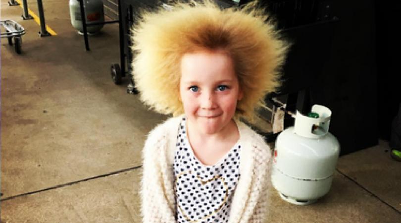 Djevojčica zbog rijetkog poremećaja ima kosu kao Ajnštajn (VIDEO)
