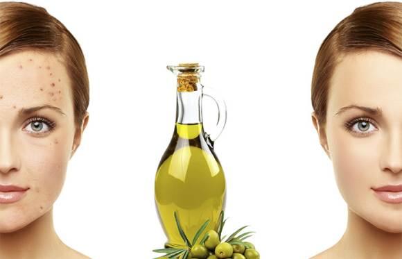 Sve blagodati maslinovog ulja za njegu kože u ljetnim mjesecima