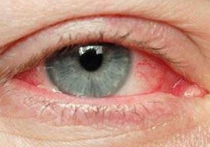 Kako šminka utiče na naše oči?